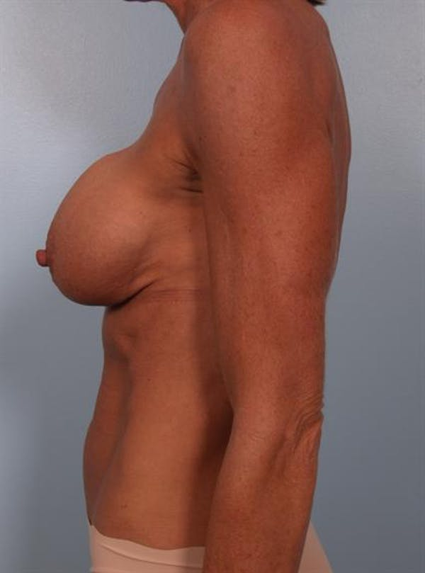 Complex Breast Revision Gallery - Patient 1310467 - Image 3