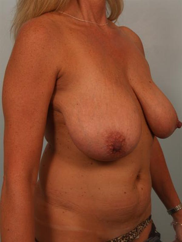 Breast Reduction Gallery - Patient 1310466 - Image 3