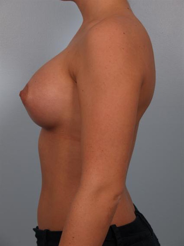 Breast Augmentation Gallery - Patient 1310465 - Image 6