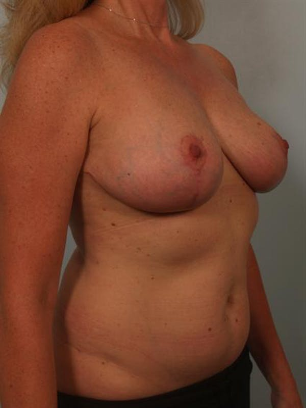Breast Reduction Gallery - Patient 1310466 - Image 4