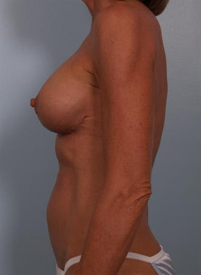 Complex Breast Revision Gallery - Patient 1310467 - Image 4