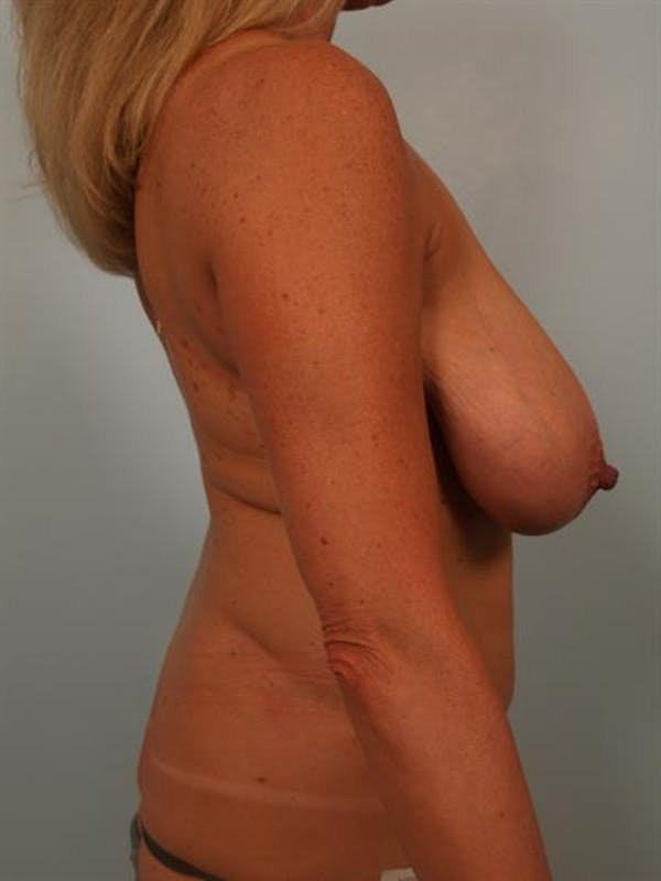 Breast Reduction Gallery - Patient 1310466 - Image 5