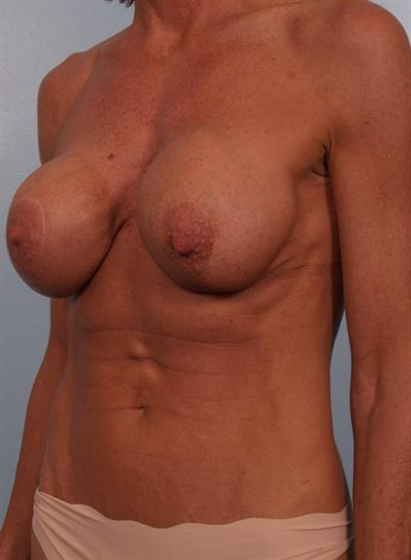 Complex Breast Revision Gallery - Patient 1310467 - Image 5
