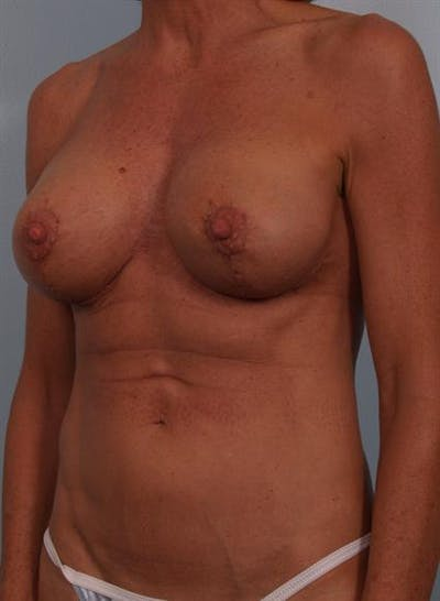 Complex Breast Revision Gallery - Patient 1310467 - Image 6