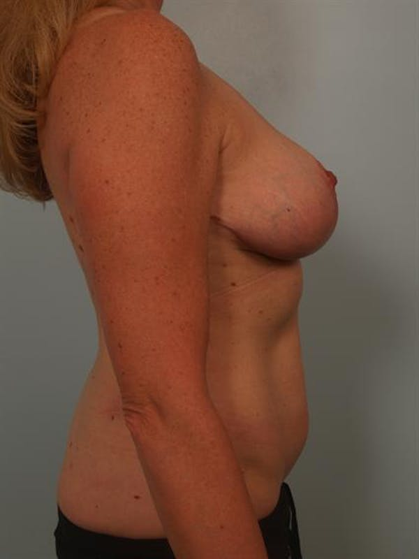 Breast Reduction Gallery - Patient 1310466 - Image 6