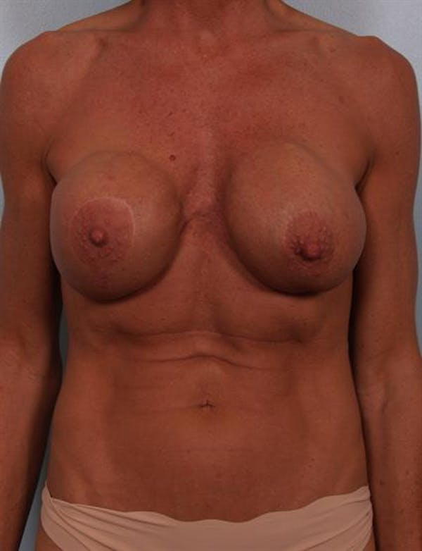 Complex Breast Revision Gallery - Patient 1310467 - Image 1
