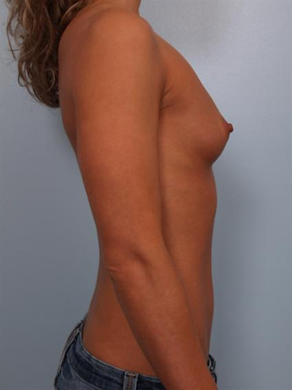 Breast Augmentation Gallery - Patient 1310471 - Image 1