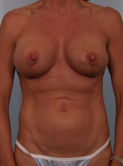 Complex Breast Revision Gallery - Patient 1310467 - Image 2