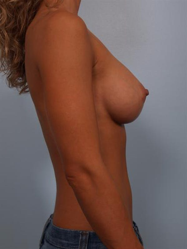 Breast Augmentation Gallery - Patient 1310471 - Image 2