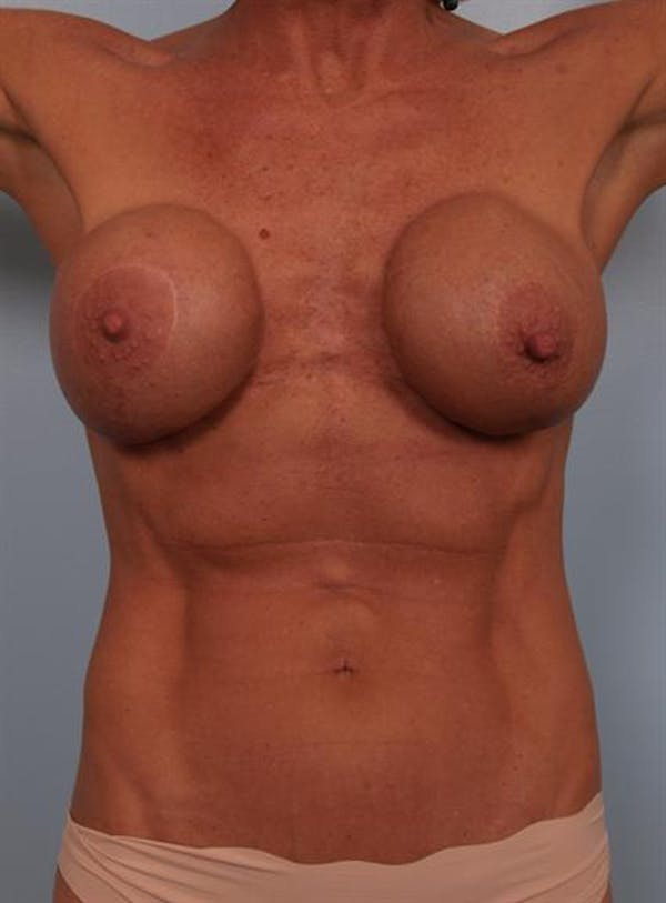 Complex Breast Revision Gallery - Patient 1310467 - Image 7