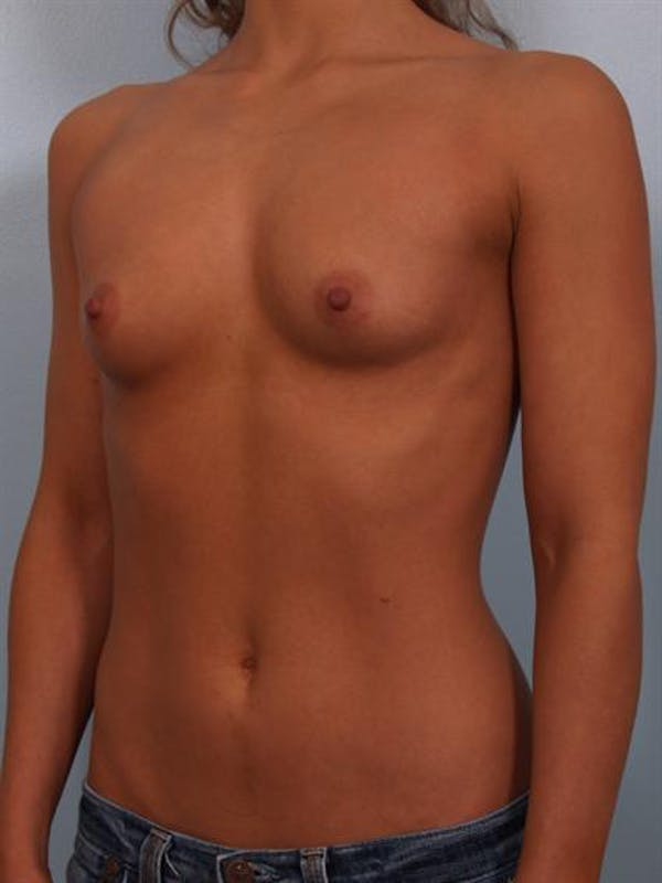 Breast Augmentation Gallery - Patient 1310471 - Image 3