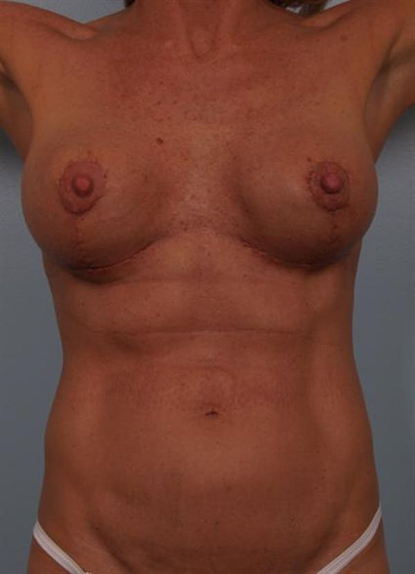 Complex Breast Revision Gallery - Patient 1310467 - Image 8