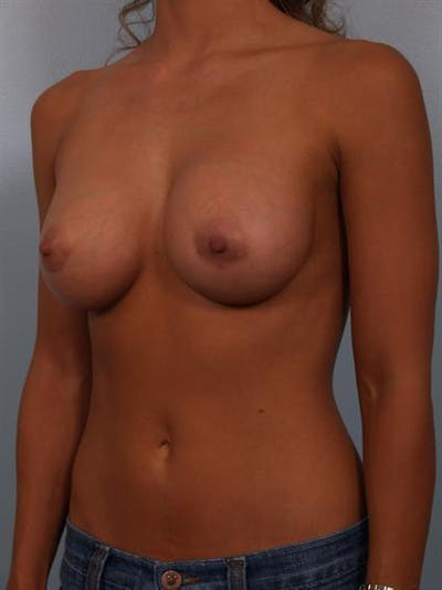Breast Augmentation Gallery - Patient 1310471 - Image 4