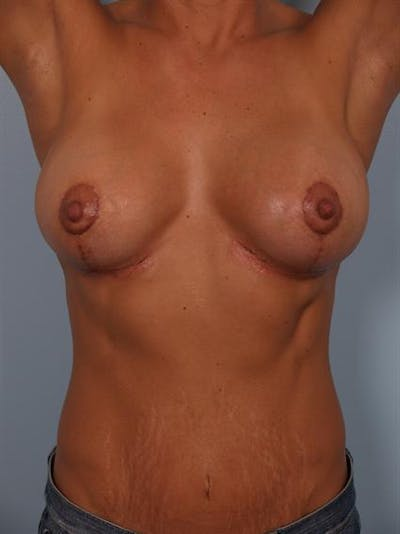 Breast Lift Gallery - Patient 1310468 - Image 8