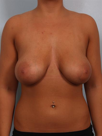 Image2 - Before and after image of Breast Revision by Dr. Cohen.