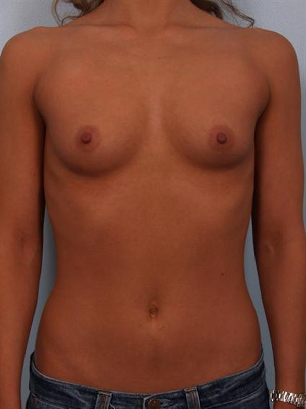 Breast Augmentation Gallery - Patient 1310471 - Image 5