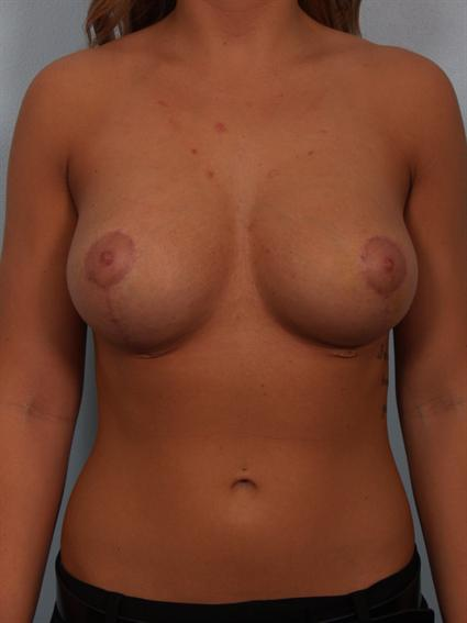 Image2 - Before and after image of Breast Rivison by Dr. Cohen.