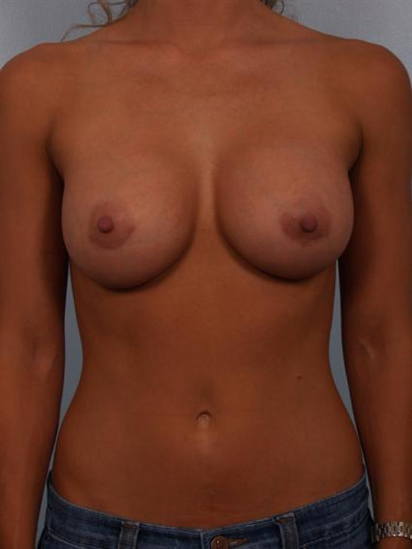 Breast Augmentation Gallery - Patient 1310471 - Image 6