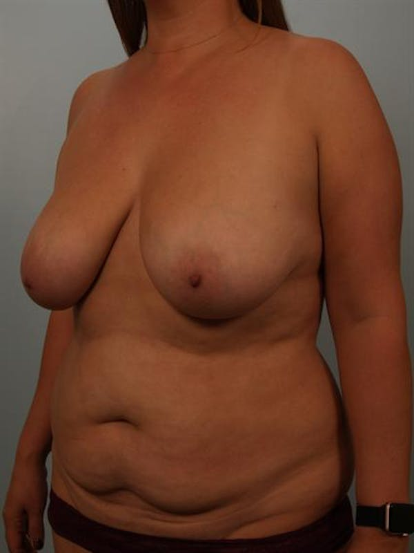 Breast Lift Gallery - Patient 1310473 - Image 3