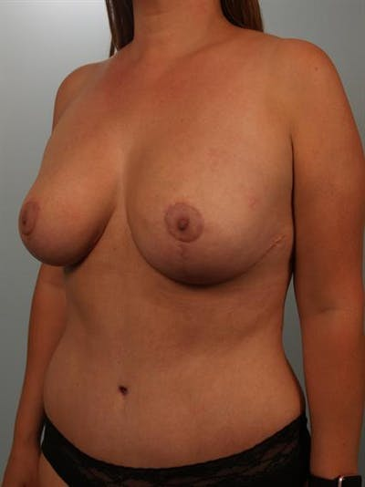 Breast Lift Gallery - Patient 1310473 - Image 4