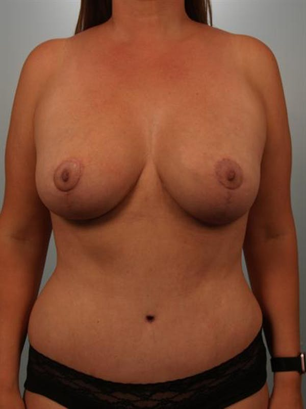 Breast Lift Gallery - Patient 1310473 - Image 2