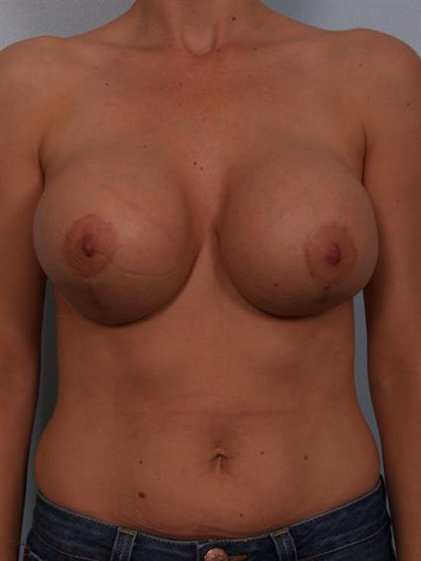 Complex Breast Revision Gallery - Patient 1310474 - Image 1