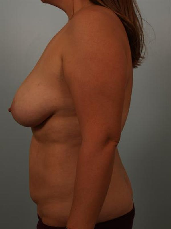 Breast Lift Gallery - Patient 1310473 - Image 5