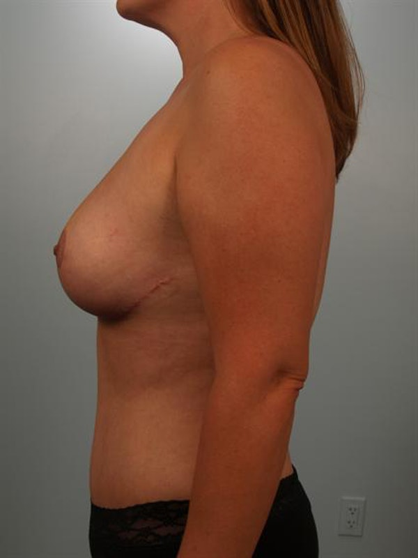 Breast Lift Gallery - Patient 1310473 - Image 6