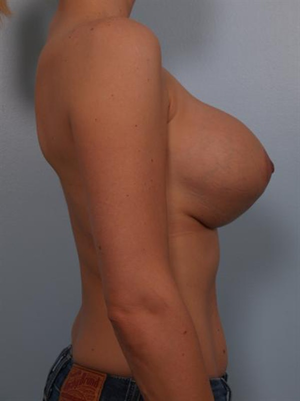 Complex Breast Revision Gallery - Patient 1310474 - Image 3