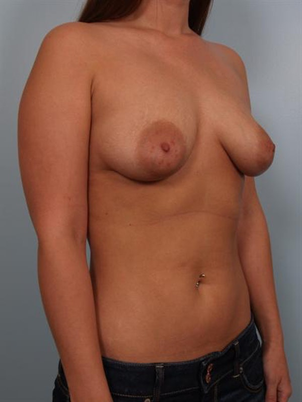 Breast Lift Gallery - Patient 1310477 - Image 3
