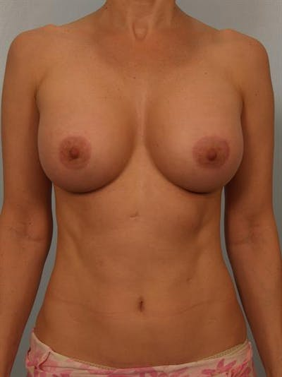 Breast Augmentation Gallery - Patient 1310475 - Image 4