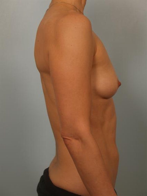 Breast Augmentation Gallery - Patient 1310475 - Image 5