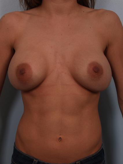 Image3 - Before and after image of Breast Revision by Dr. Cohen.