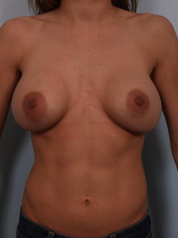 Complex Breast Revision Gallery - Patient 1310478 - Image 1