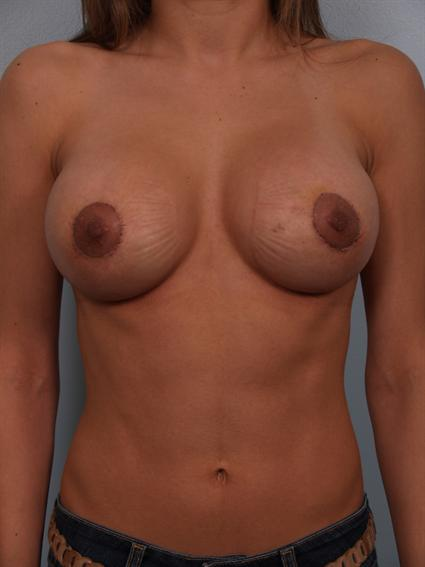 Image3 - Before and after image of Breast Rivison by Dr. Cohen.