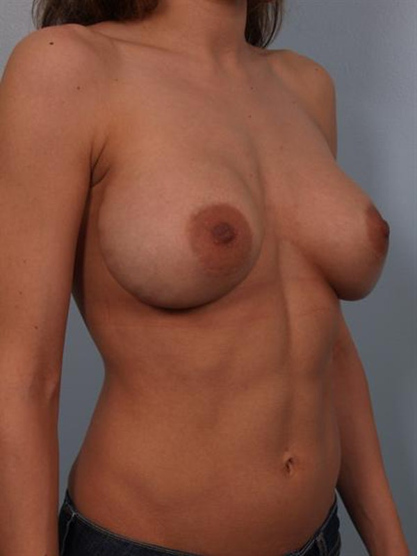 Complex Breast Revision Gallery - Patient 1310478 - Image 3