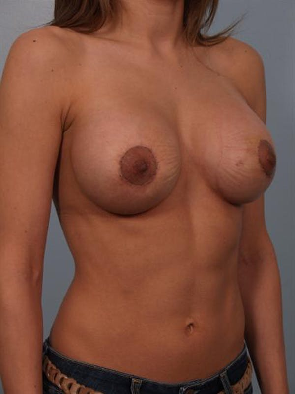 Complex Breast Revision Gallery - Patient 1310478 - Image 4