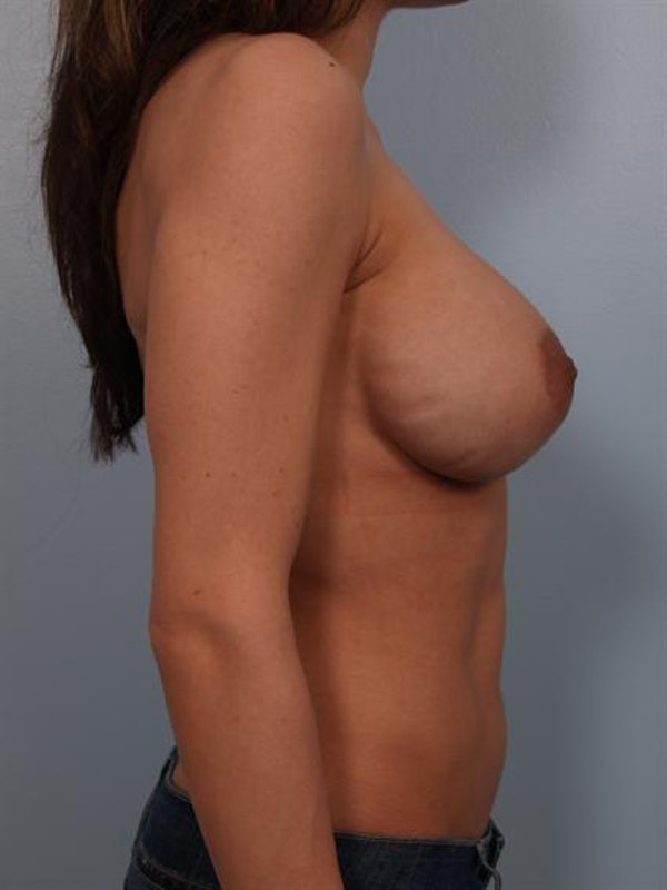 Complex Breast Revision Gallery - Patient 1310478 - Image 5