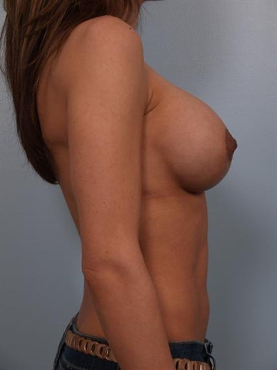 Complex Breast Revision Gallery - Patient 1310478 - Image 6