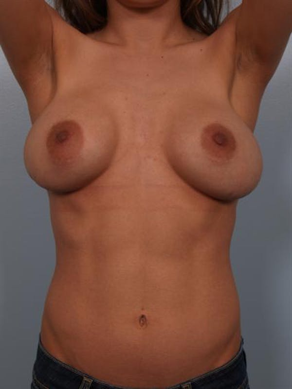 Complex Breast Revision Gallery - Patient 1310478 - Image 7