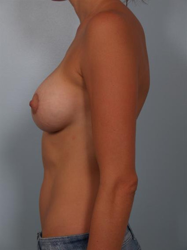 Breast Augmentation Gallery - Patient 1310479 - Image 4