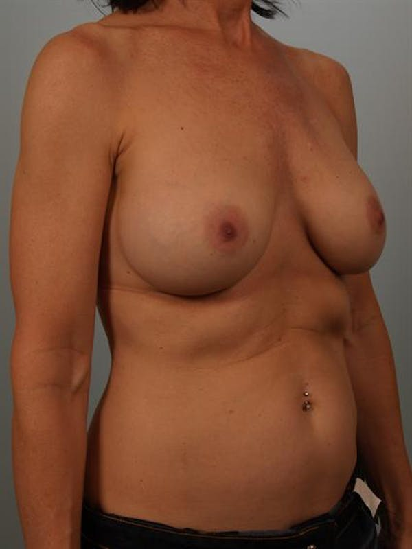 Breast Lift Gallery - Patient 1310480 - Image 3