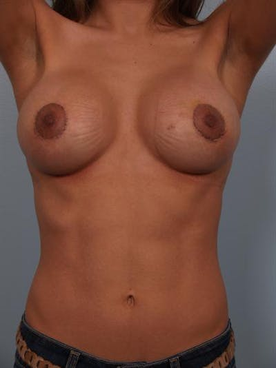 Complex Breast Revision Gallery - Patient 1310478 - Image 8