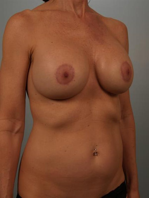 Breast Lift Gallery - Patient 1310480 - Image 4