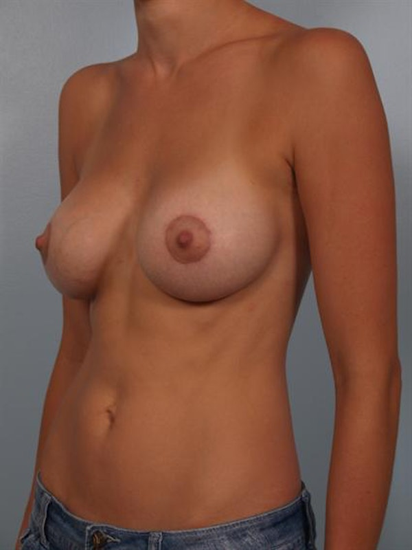 Breast Augmentation Gallery - Patient 1310479 - Image 6