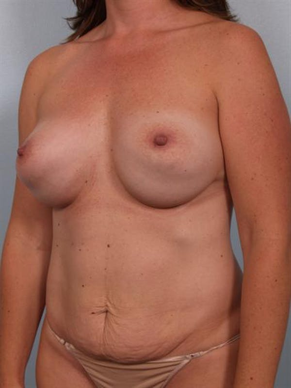 Complex Breast Revision Gallery - Patient 1310482 - Image 3