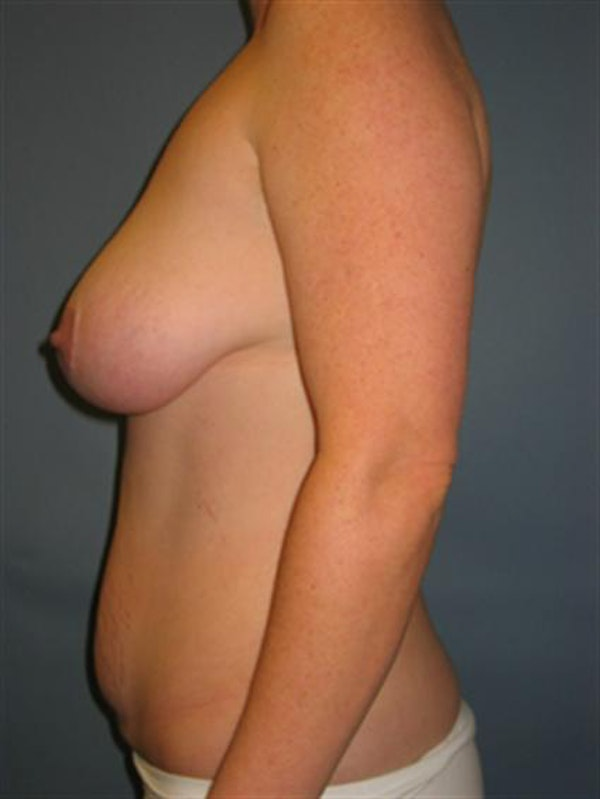 Breast Lift Gallery - Patient 1310486 - Image 3
