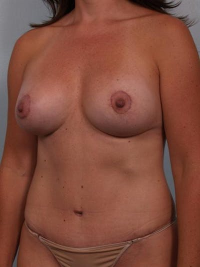 Complex Breast Revision Gallery - Patient 1310482 - Image 4