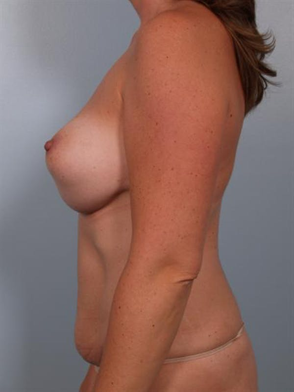 Complex Breast Revision Gallery - Patient 1310482 - Image 5