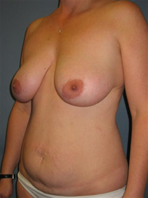 Breast Lift Gallery - Patient 1310486 - Image 5